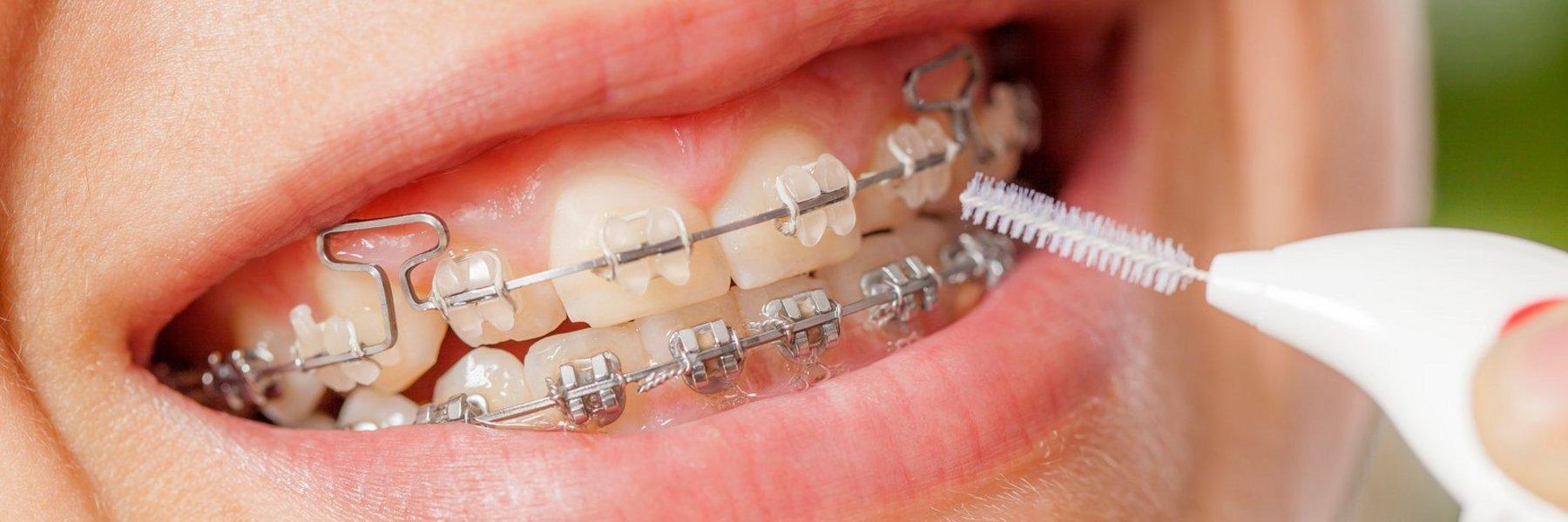 Zahnspange außenbogen Außenbogen zahnspange