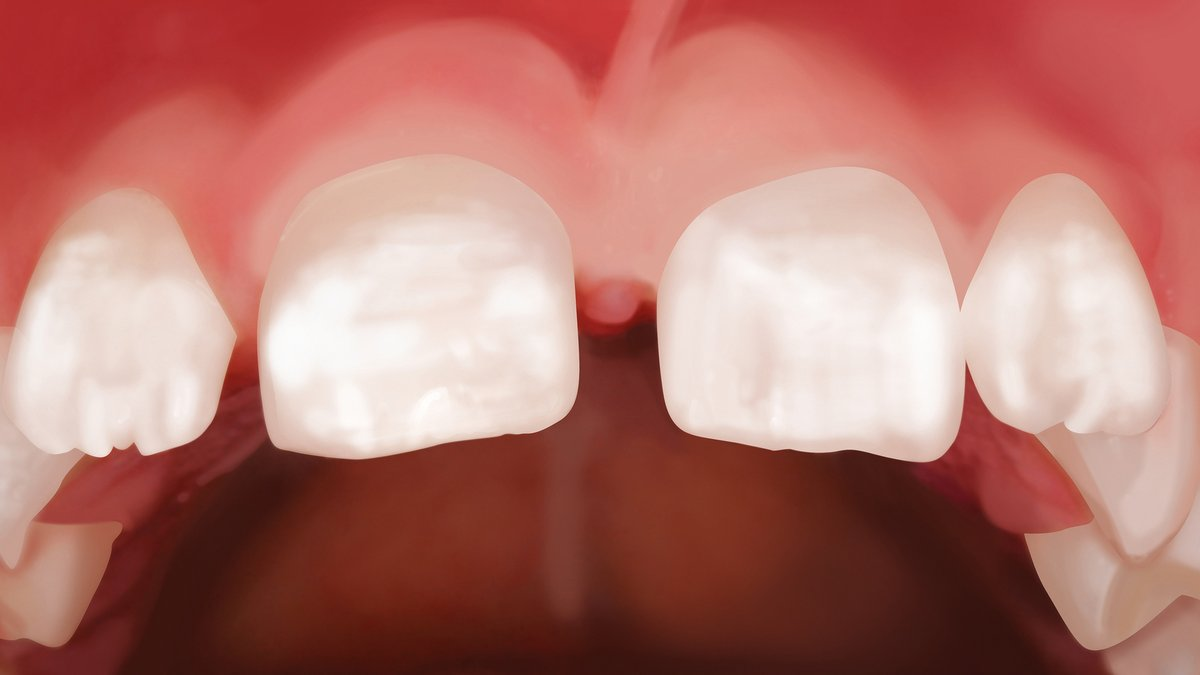 Graue stelle zahn Patientenfrage: Dunkle