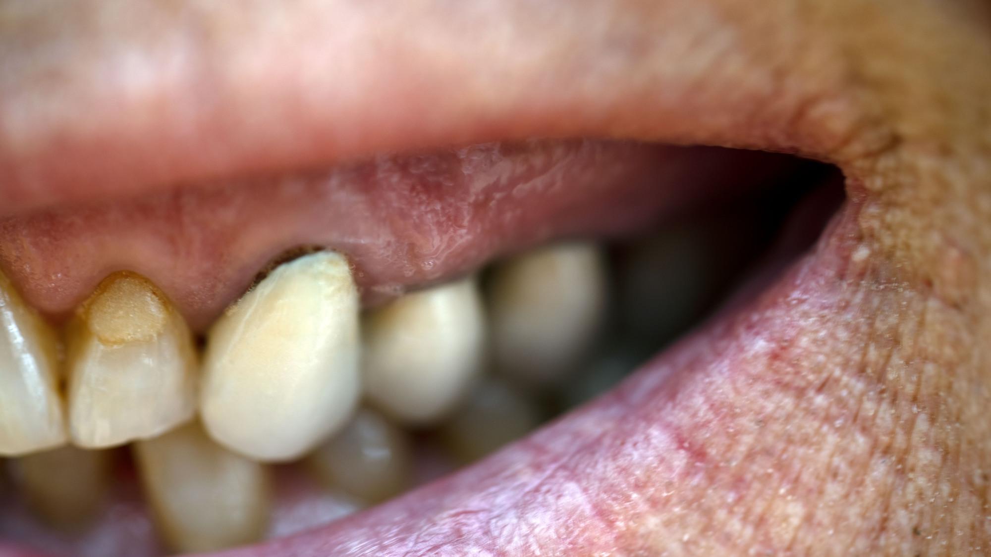 Achtung Zahnfleisch geht zurück: dunkle Ränder an